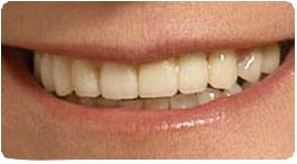 Costa Rica Dental Bridge, After