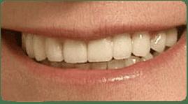 Puente dental después