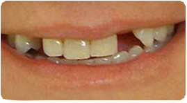 Costa Rica Dental Bridge, Before