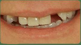 Puente dental antes