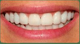 Costa Rica Dental Crown, después