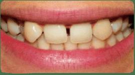 Corona Dental Costa Rica, Antes