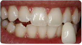 Costa Rica Teeth Whitening After illustration
