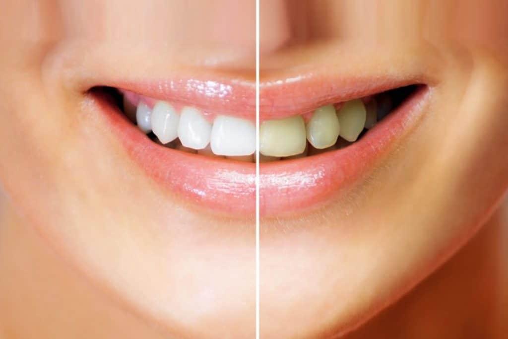 Costa Rica Teeth Whitening