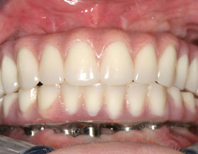 Implantes dentales All-on-4