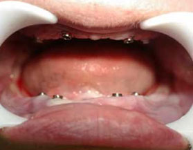 Implantes dentales All-on-4  en Costa Rica
