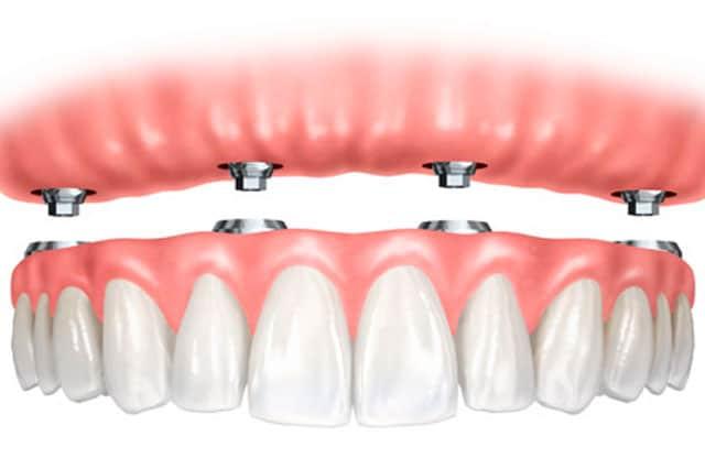 All-on-Four Dental Implants