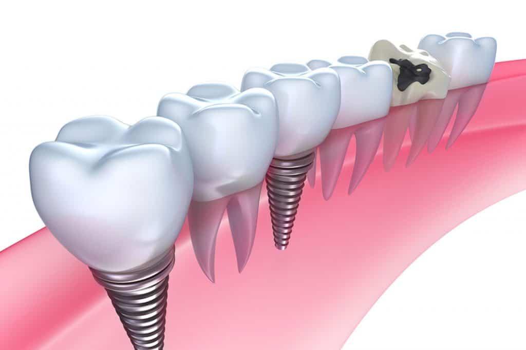 Type of Dental Implants, Costa Rica Implants