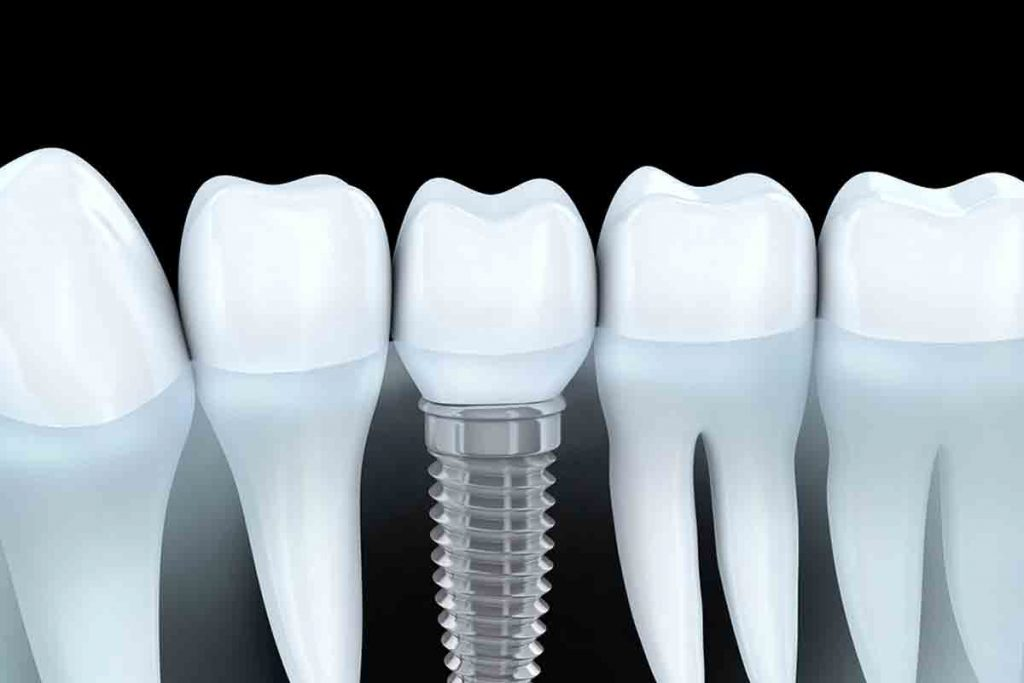 Costa Rica Dental Implants Graphics