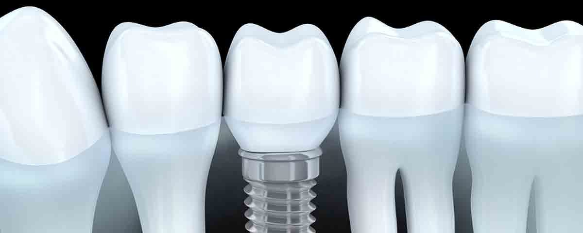 Costa Rica Dental Implants Graphics