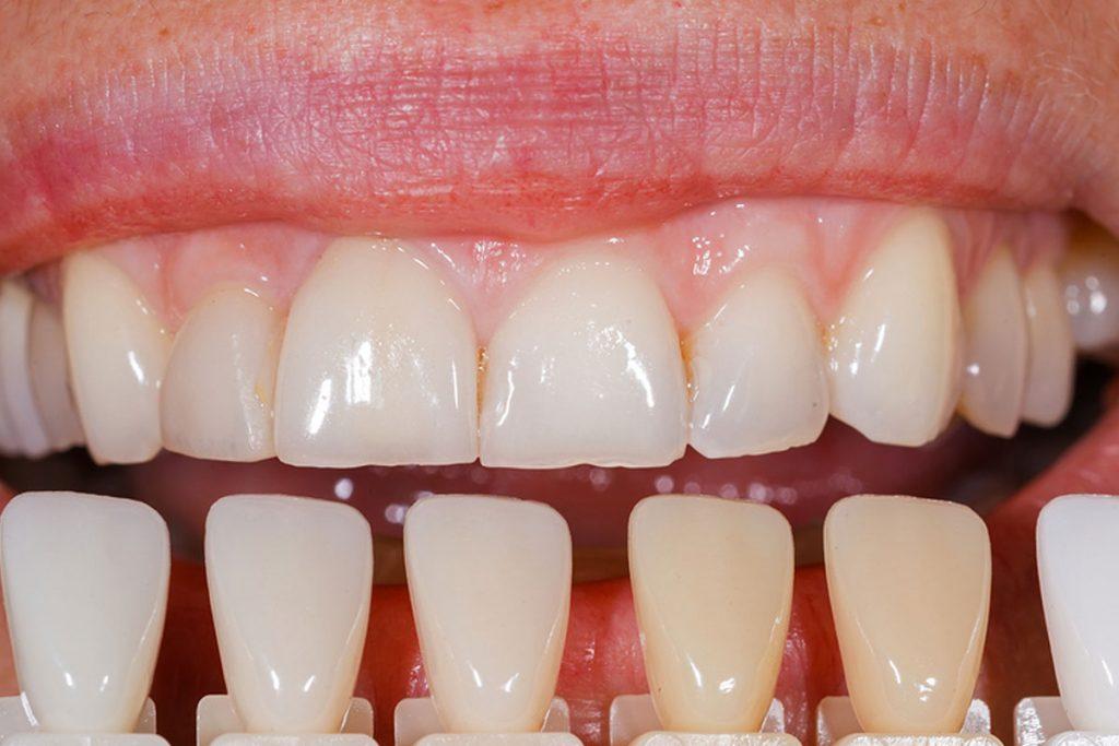 Costa Rica Dental Veneers