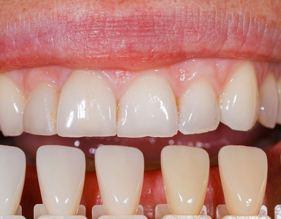 Costa Rica Dental Veneers