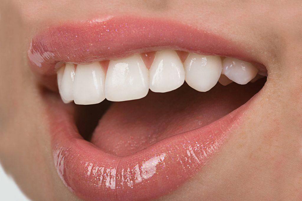 Front Teeth Veneers