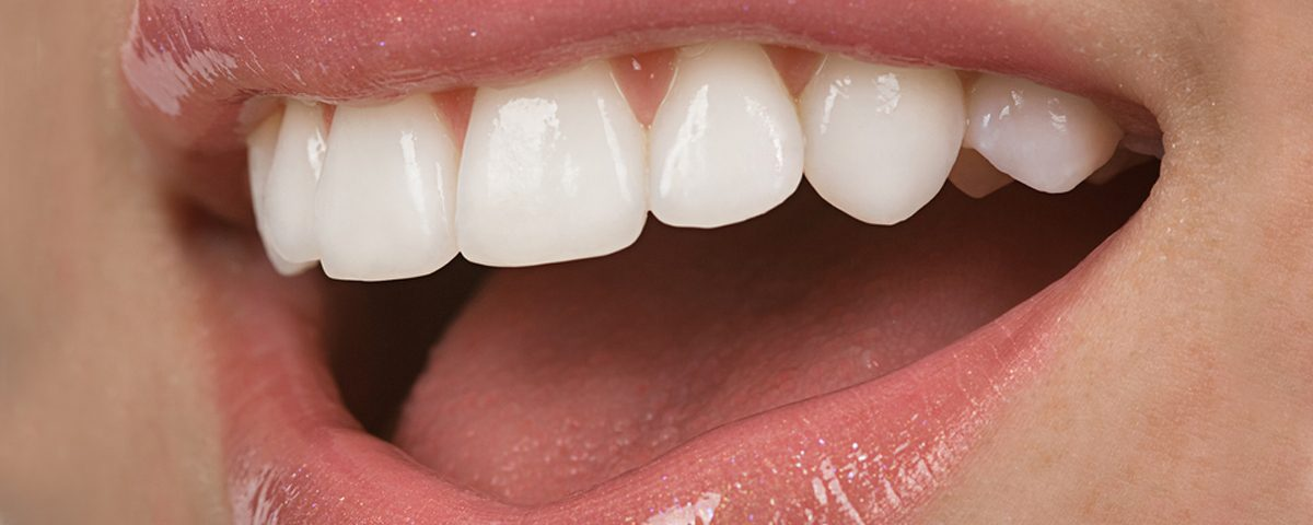Front Teeth Veneers