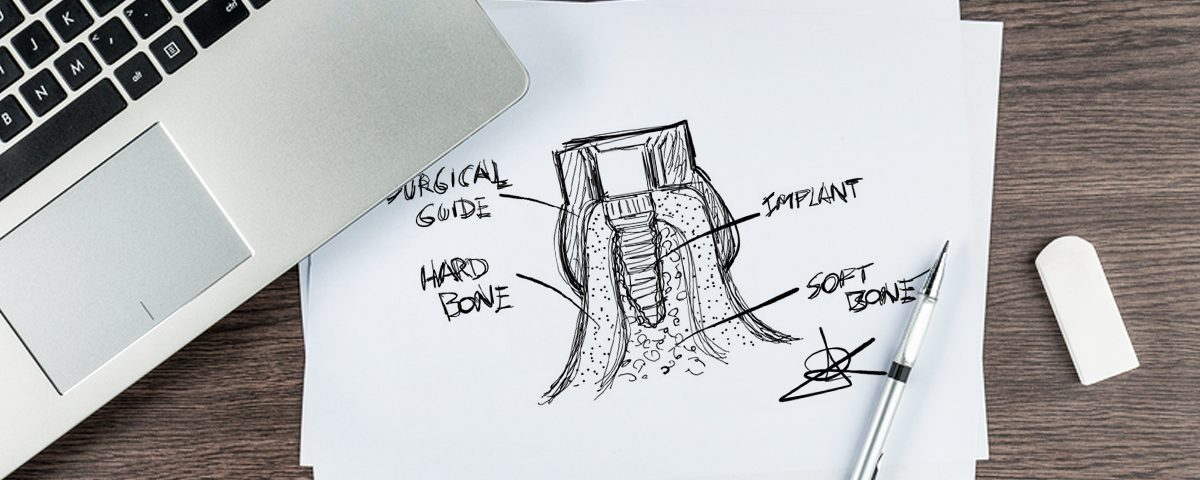 Surgical Guide Drawing