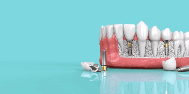 5 Steps toward your Dental Implant