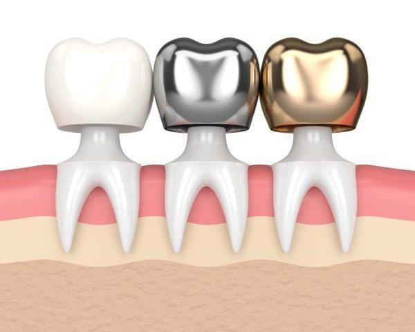 The Core Buildup - Costa Rica Dental