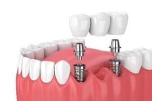 Bridge dental implants in Costa Rica
