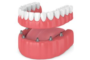Removable dental implants in Costa Rica