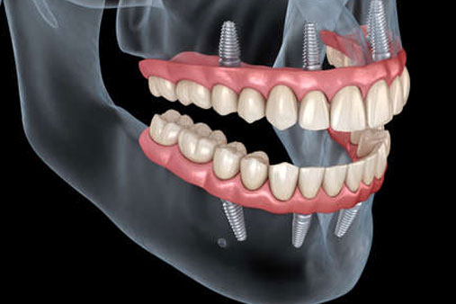 All on 4 Dental Implants in Costa Rica