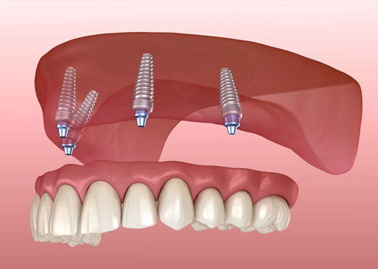 Eligibility for All-on-4 Dental Implants